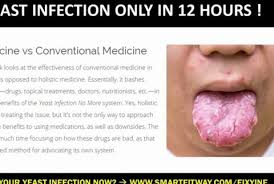 What is yeast infection?